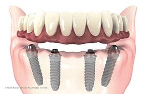 Методика имплантации Все на 4