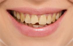 Зуб до операции реставрации с дефектом