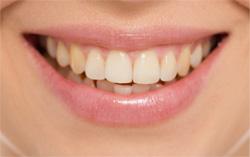 Зуб после операции реставрации