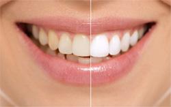 Зубы пациента до и после отбеливания