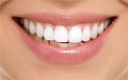 Зубы после процедуры отбеливания