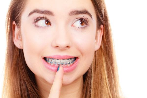 Ортодонтическую коррекцию нужно начинать как можно скорее, не дожидаясь, пока встанет выбор между брекетами и имплантацией