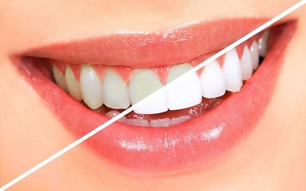 Система Opalescence осветляет зубы на 5 тонов и более