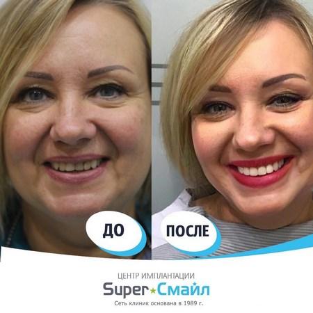 На фото виниры «Super Смайл» — до и после