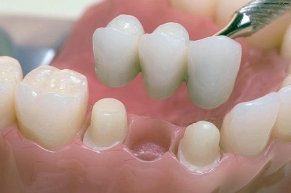 Опорные зубы для протезирования