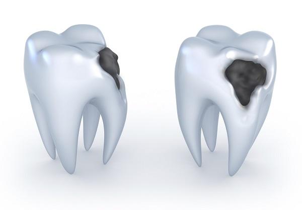 Кариес значительно разрушает твердые ткани зуба