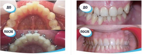 На фото — зубы до и после ортодонтического лечения