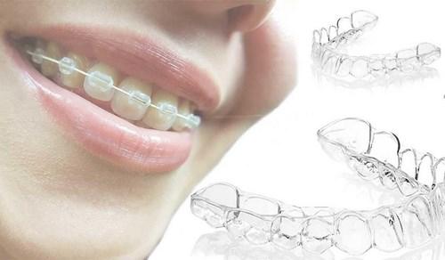 На фото — ортодонтические скобы и элайнеры