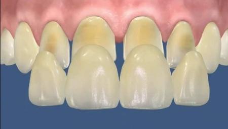 Обточка зубов под виниры