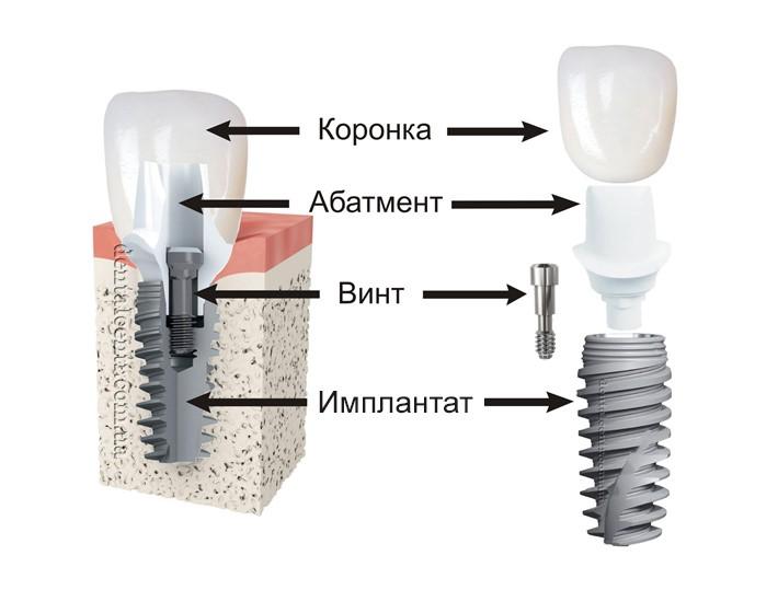 На фото – составные части имплантата