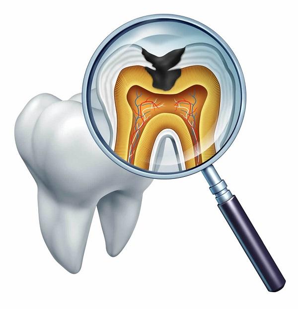 Разрушая дентин, кариес вызывает различные осложнения