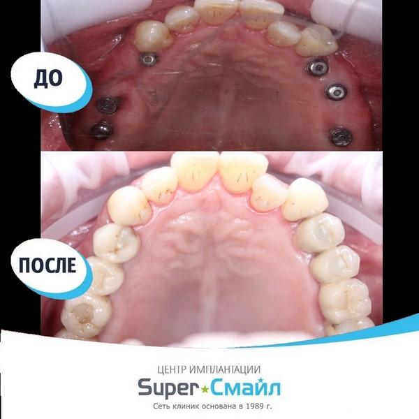 Фото имплантации по технологии All-on-4
