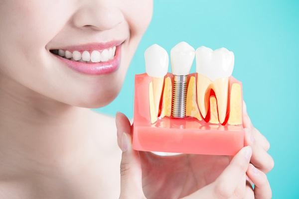 Имплантаты Alpha Bio имеют высокое качество и станут полноценной заменой естественным зубам