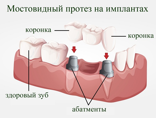 Мостовидный протез с опорой на имплантатах