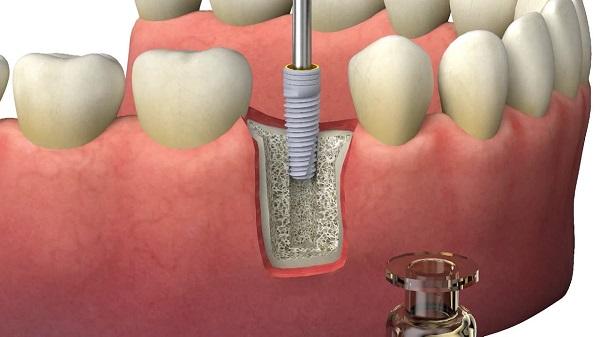 Особая конструкция обеспечивает плотное положение имплантата и его быстрое приживление