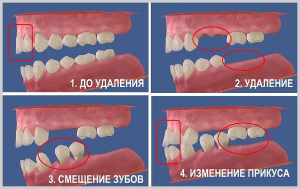 Схематическое изображение формирования зубочелюстных деформаций после удаления зубов